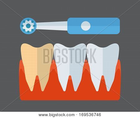 Electric tooth brush and implants vector illustration. Dental care morning protection toothpaste isolated on white background. Healthcare mouth toiletries smile wash tool.