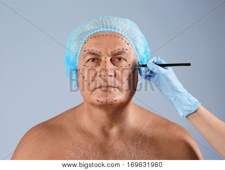 Surgeon drawing marks on male face against color background. Plastic surgery concept