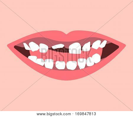 Milk tooth and permanent teeth in eruption. Kid smile. Vector illustration flat design