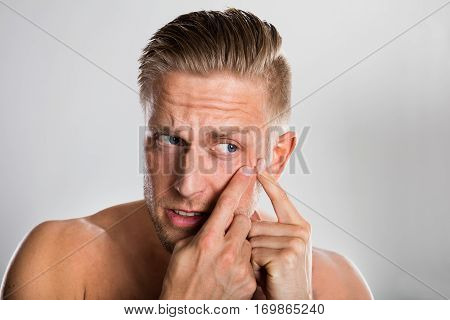 Man Squeezing Pimple On His Face Against Grey Background. Acne Skin Problem