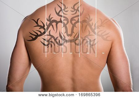 Laser Tattoo Removal On Shirtless Man's Back Against Grey Background