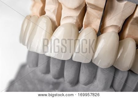 Close-up view of dental layout of upper row of teeth prothesis on artificial jaw medical concept