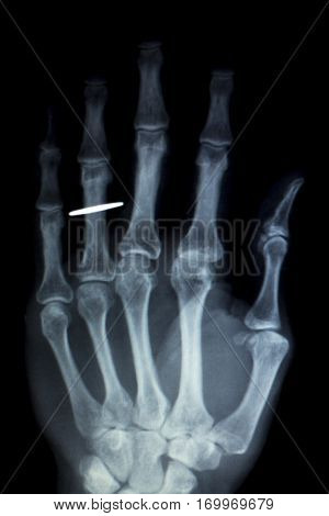 Hand Fingers Implant Xray Scan