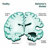 Cross section of the human brain. Healthy brain compared to Alzheimer's disease (dementia senility) poster