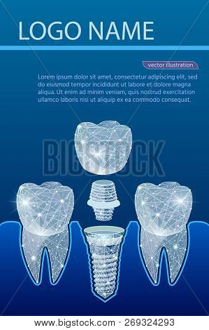 Healthy Teeth And Dental Implant. Dentistry. Implantation Of Human Teeth. Vector Illustration