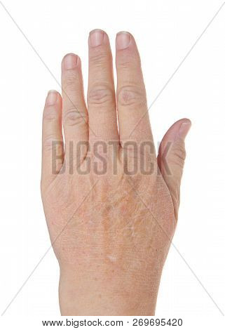 Adult Caucasian Hand Isolated On White Background With Very Dry Cracked Skin. More Common In Colder