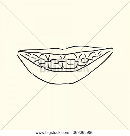 Dental Braces Hand Drawn Outline Doodle Icon. Dentistry, Stomatology And Orthodontist Concept. Vecto