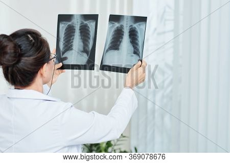 Pulmonologist Checking X-rays Of Patient With Pneumonia, View From The Back