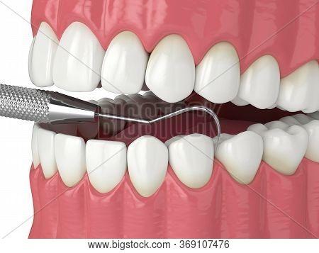 3d Render Of Jaw With Dental Explorer. Dental Diagnostic Tools Concept.