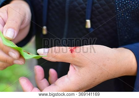 Wound On A Tourist's Hand With Blood In The Forest. Plantain Healing On A Wound. Hemostatic Medicina