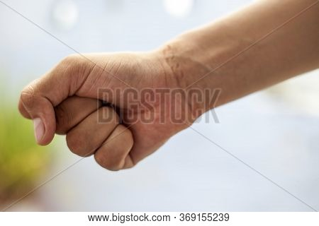 Shot Of Male Hand With The Impact Of Chain Tied On His Wrist. Shot Of Human Hand With Chain Impact W