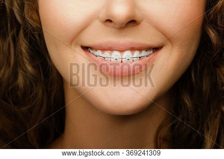 closeup shot of pretty female smile with white teeth wearing dental braces and making orthodontic treatment