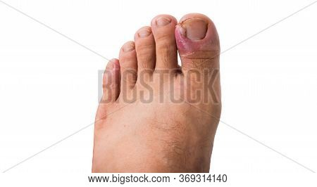 Close Up Of Ingrown Toenail Is Inflamed Fingernails Isolated On White Background. Health Care And Fo