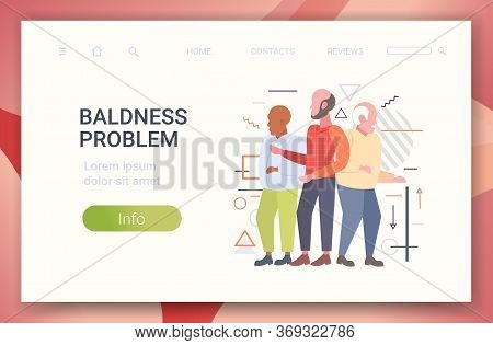 Men With Bald Head Standing Together Hair Loss Baldness Problem Concept Horizontal Copy Space Full L