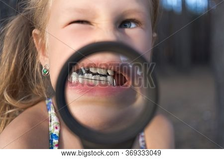 A Little Girl Put A Magnifying Glass To Her Mouth To Show An Orthodontic Appliance, Crooked Teeth An