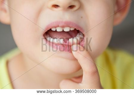 Close-up. The Child Dropped The First Milk Tooth. Happy Little Boy And Milk Tooth.