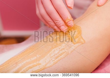 Sugaring. Beauty Concept. Young Woman Gets The Procedure For Hair Removal Liquid Sugar. Beautician D