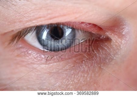 Contented Gaze Man, Close Up Human Eye European. Mens Cream For Skin Around The Eyes. Male Eye Is Bl