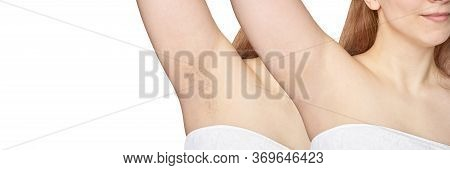 Girl Underarm. White Woman Armpit. Before After Epilation Collage. Wax Depilation Result Concept. La