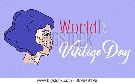 World Vitiligo Day. Bob Hairstyle Asian Girl With Pigment Spots. Asian Lady With Vitiligo. Side View