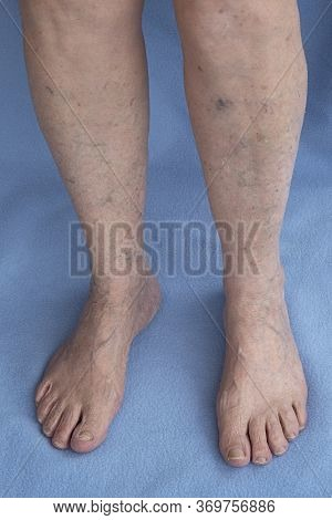 Varicose Veins On Old Female Legs. Phlebology