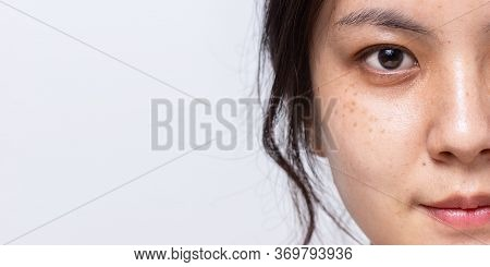 Close Up Half Fresh Face Of Asian Women Is Looking At Camera On White Banner Background With Copy Sp