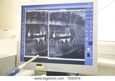 Xrays Of Dental Work On Teeth