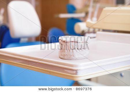 Gypsum dentures