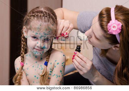 Mom Cauterize Zelenkoj Chickenpox Rash In A Child