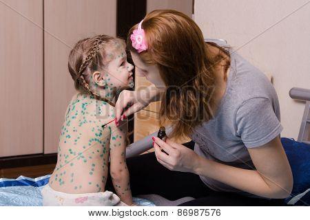 Girl Suffering From Chickenpox Sores Mom Misses Zelenkoj
