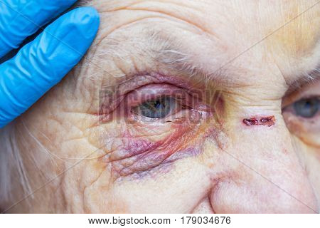 Close up picture of an injured elderly woman crying and a nurse's fingers
