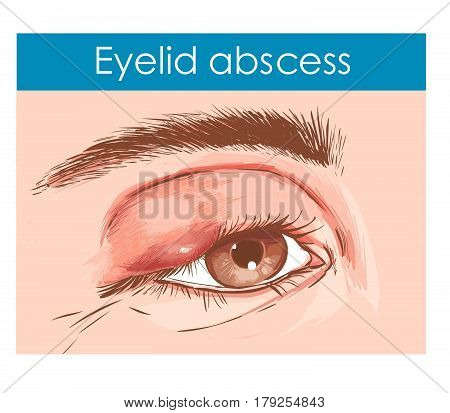 Close up of an eye with an infected eyelid