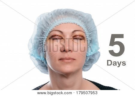 Blepharoplasty of the upper eyelid. An operation that removes the excess ugly skin of the eyelids above the eyes. The eyes are closed. Photos are taken at different times to track the healing process of the skin. Five days after the operation.