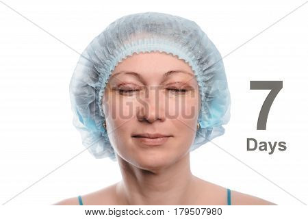 Blepharoplasty of the upper eyelid. An operation that removes the excess ugly skin of the eyelids above the eyes. The eyes are closed. Photos are taken at different times to track the healing process of the skin. Seven days after the operation.
