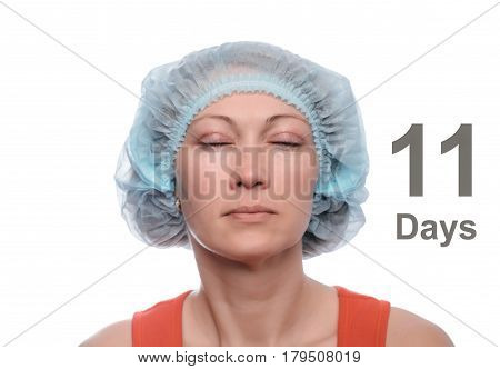 Blepharoplasty of the upper eyelid. An operation that removes the excess ugly skin of the eyelids above the eyes. The eyes are closed. Photos are taken at different times to track the healing process of the skin. Eighteen days after the operation.