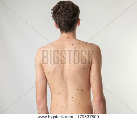 Young man with birthmarks on light background