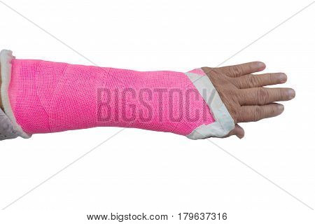 arm splint be in plaster cast isolate on white background