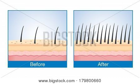 Number of Hair on scalp before and after of treatment hair loss.