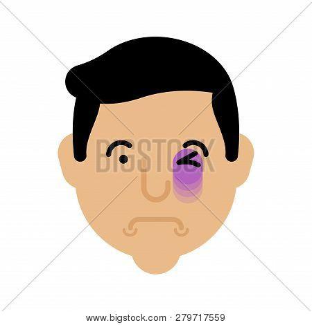Eye Bruise Face. Bruise Head. Black Eye Portrait