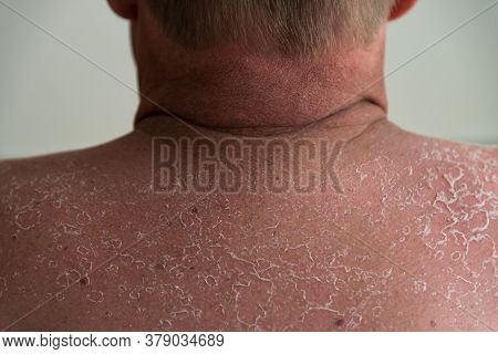 Sniffing The Blisters After Sunburn On The Back