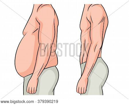 Color Vector Illustration Isolated On White Background. Man Before And After Losing Weight. Male Bod