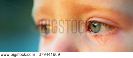 Cry Baby With Sky Blue Eyes, Close Up. Little Tender Boy Crying. Eye Drop, Tear Drop Of Little Sweet