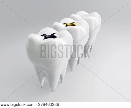 Teeth With Gold, Amalgam And Composite Inlay Dental Filling. Molars On White Backdrop. Different Typ