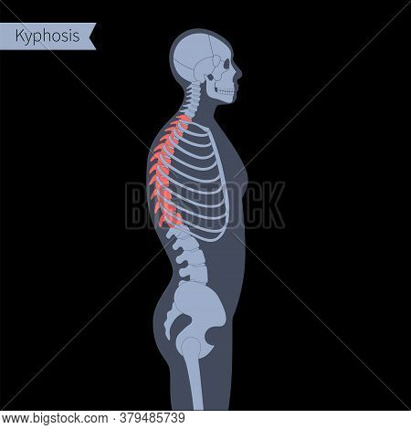 Kyphosis In Human Body. Xray Flat Vector Illustration. Spine, Backbone, Joint And Skeleton Anatomy I