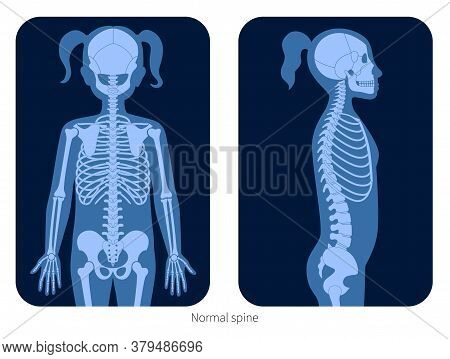 Normal Spine In Girl Body. Xray Flat Vector Illustration. Backbone Joint And Skeleton Anatomy In Chi