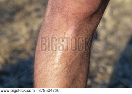 Scar On The Leg, After Injury. The Last Stage Of Wound Healing, Scarring. Skin Trauma, Wound Change