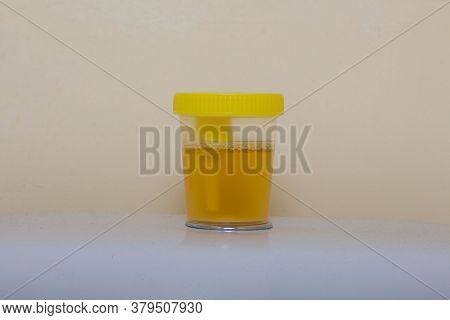 Urine In A Container For Analysis. Stands On The Toilet Cistern. Disposable Medical Polymeric Steril
