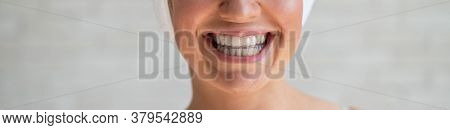 Close-up Of A Smiling Woman In A Transparent Plastic Bleaching Tray. Removable Retainer For Perfectl