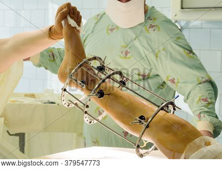 External Ring Fixation Technique In Orthopedic Medicine