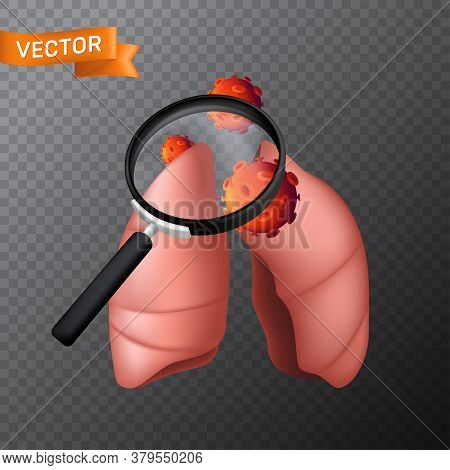 Human Body Lungs Under A Magnifying Glass With Viral Cells. Vector Medical Illustration Of Finding V